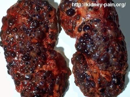 What Do Cats Get Kidney Disease Natural Health