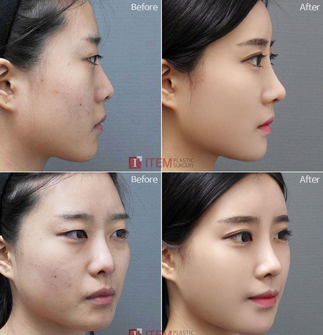 Korean face plastic surgery – chin, lips and nose – before and after