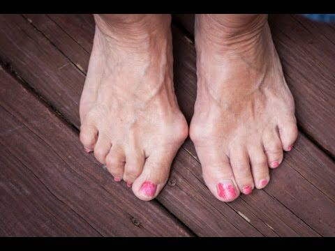Bunions of both feet