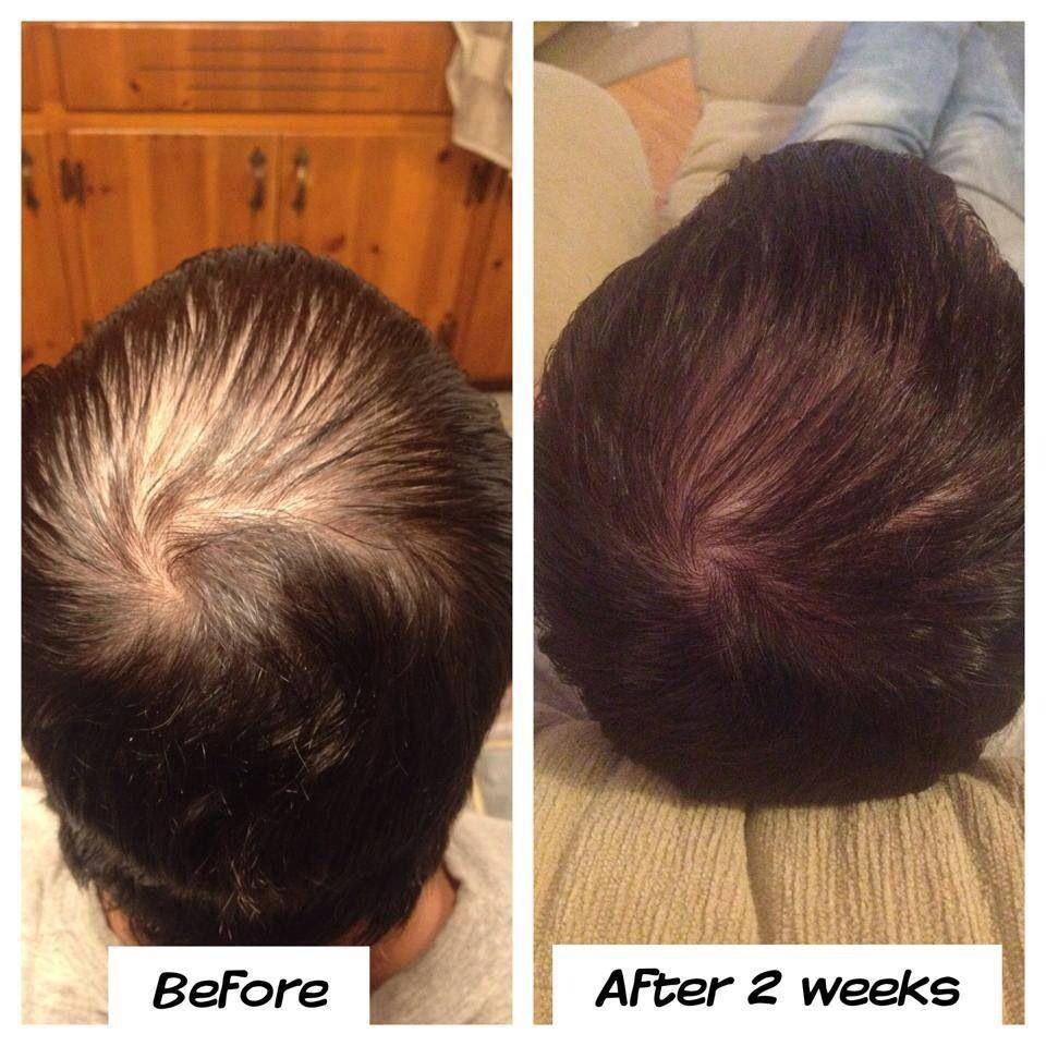 It works! Hair skin and nails! Https://wrapmeskinnytam.myitworks.com ...