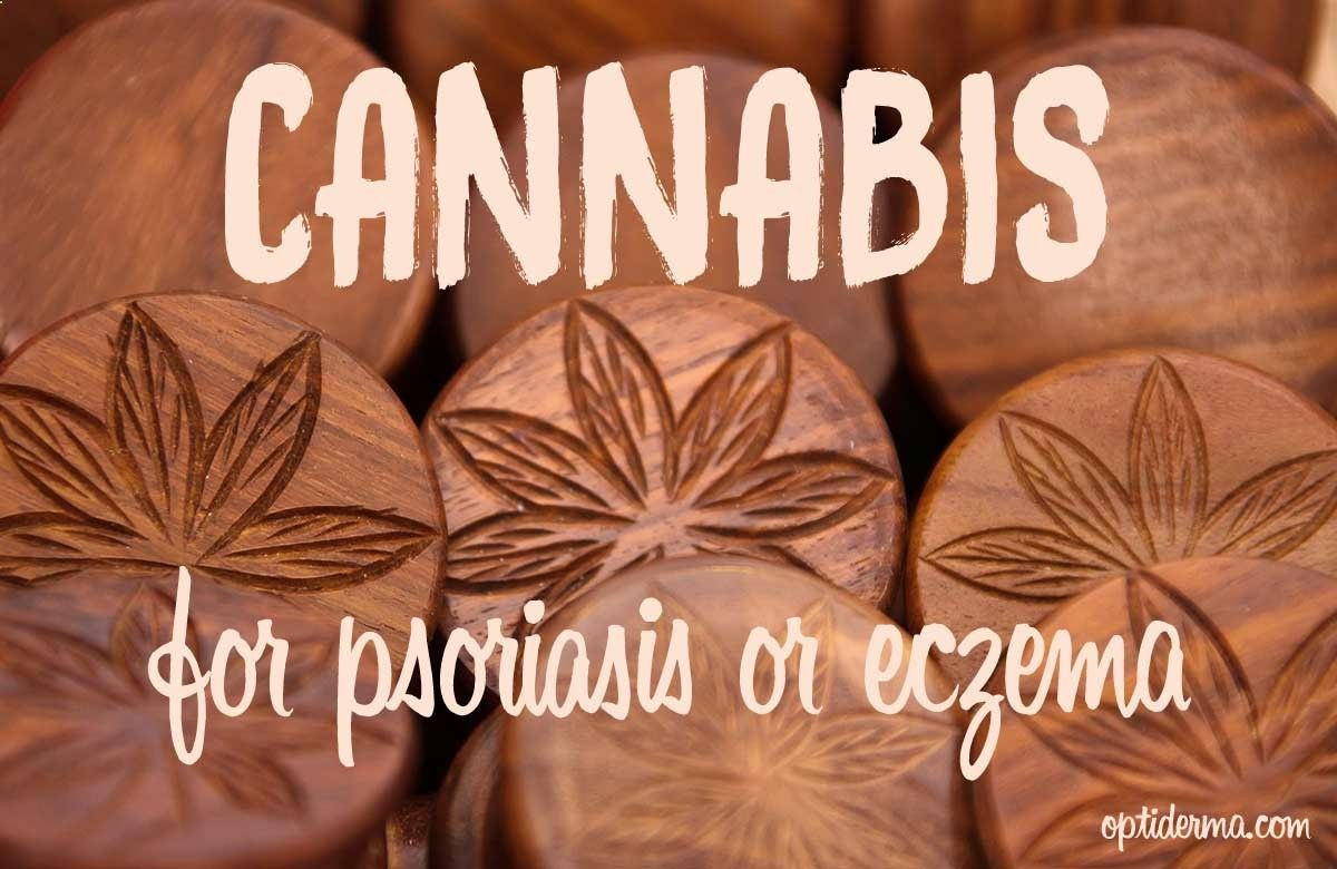 In my search for natural remedies for eczema and psoriasis, I stumbled upon cannabis as a potential candidate for alleviating the symptoms associated with these skin conditions. Despite its shaky reputation, using cannabis for psoriasis and eczema treatme