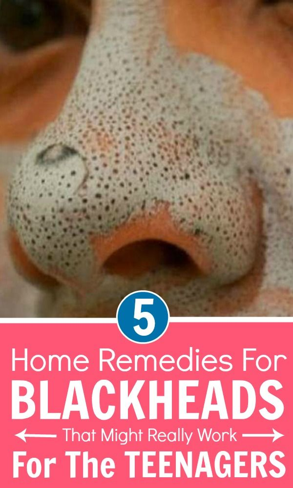 Blackheads are an annoying problem at teenage and are represented as small black…