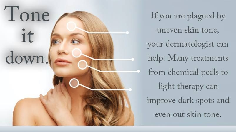 Tone it down. If you are plagued by uneven skin tone, your #dermatologist can help