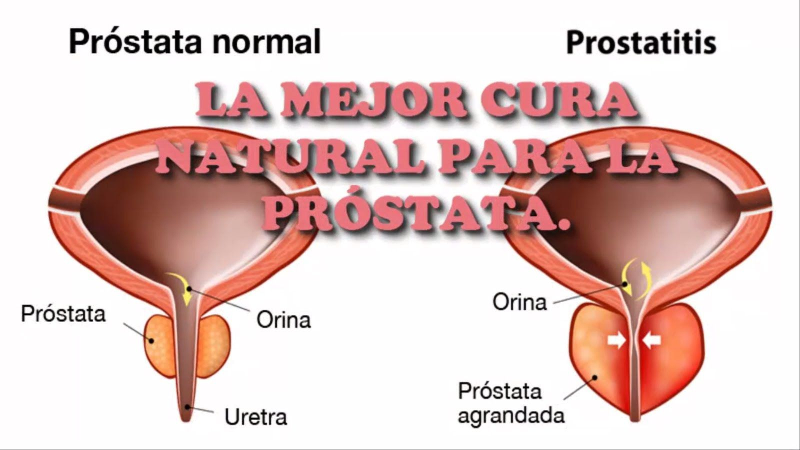 viagra reparó mi próstata agrandada