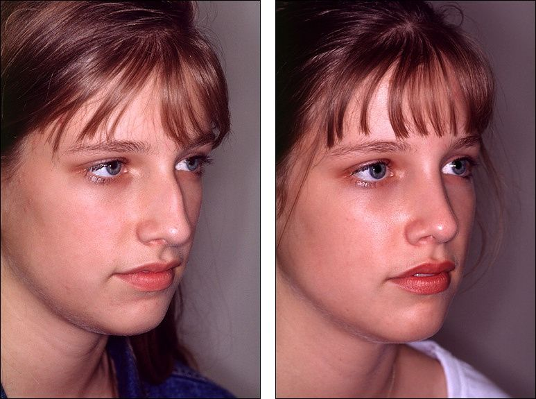 Celebrity chin reshaping