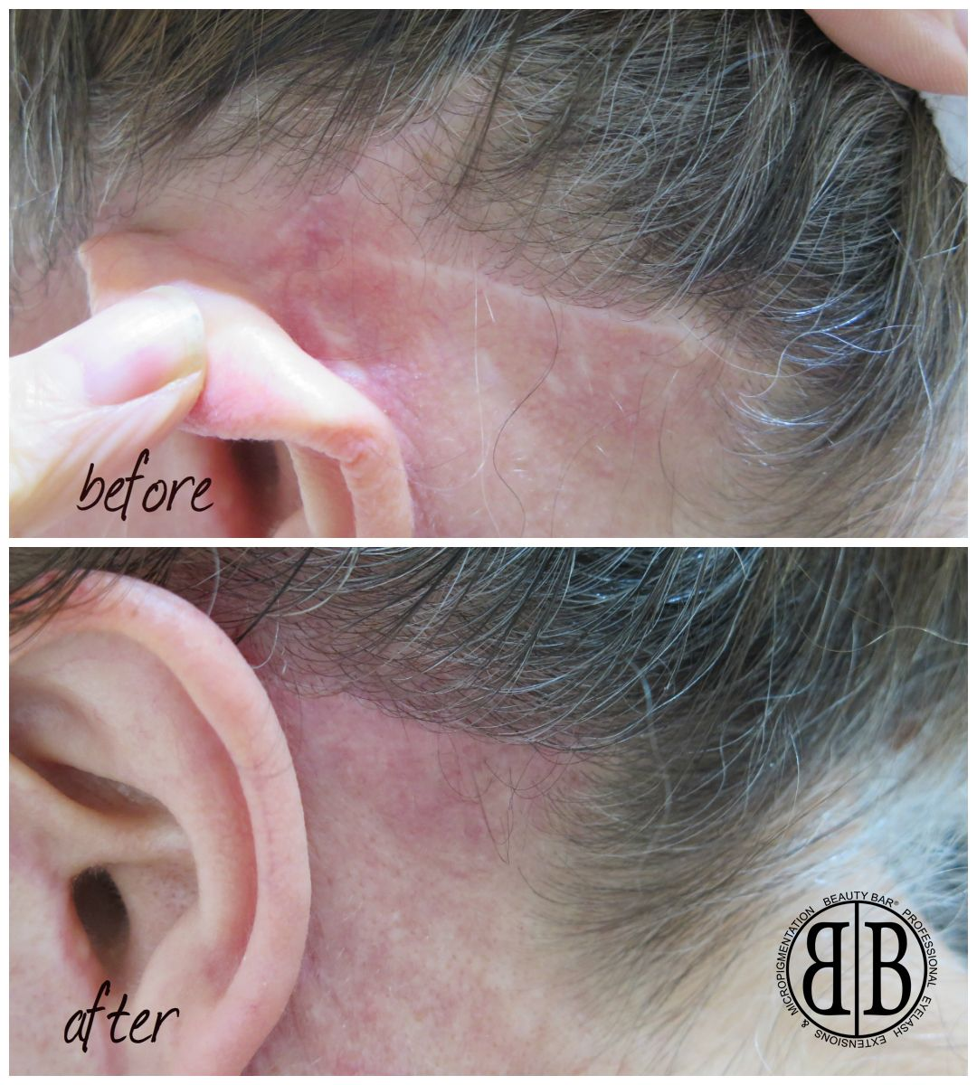 Permanent Cosmetic Tattooing - allure-medispa.com
