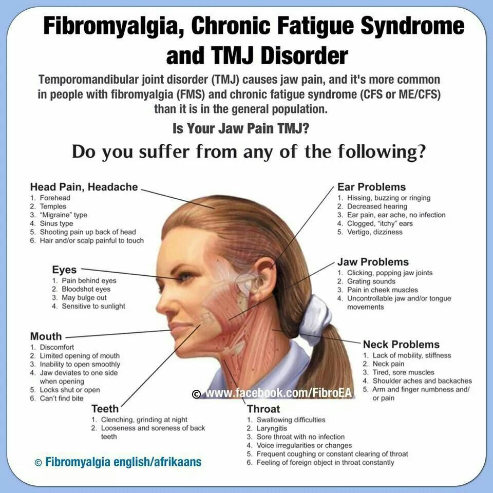 Pin By Heather Robbins On Fibromyalgia Tmj Headache Temporomandibular Joint Temporomandibular Joint Disorders