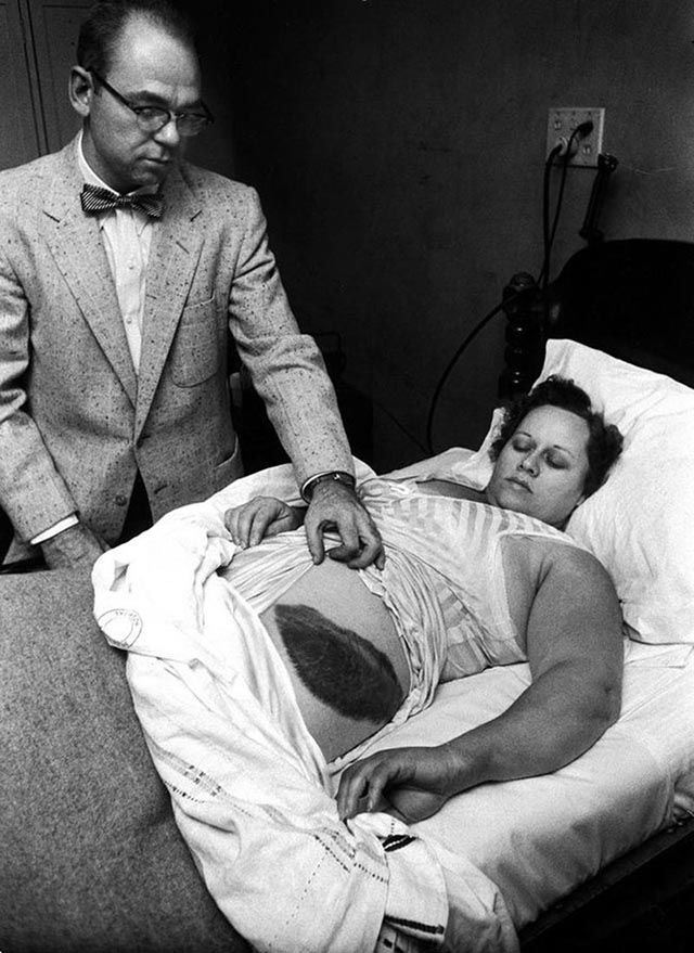 Doctor Moody Jacobs shows a giant bruise on the side his patient, Ann Hodges, the only person in history to have been struck by a meteorite. [1954]