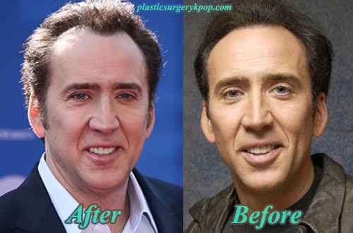 Nicolas Cage Plastic Surgery Before And After Pictures Celebrity Plastic Surgery Plastic Surgery Plastic Surgery Photos