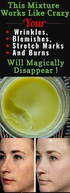 Prepare This Mixture Right Now And Your Wrinkles, Blemishes, Stretch Marks And Burns Will Magically...