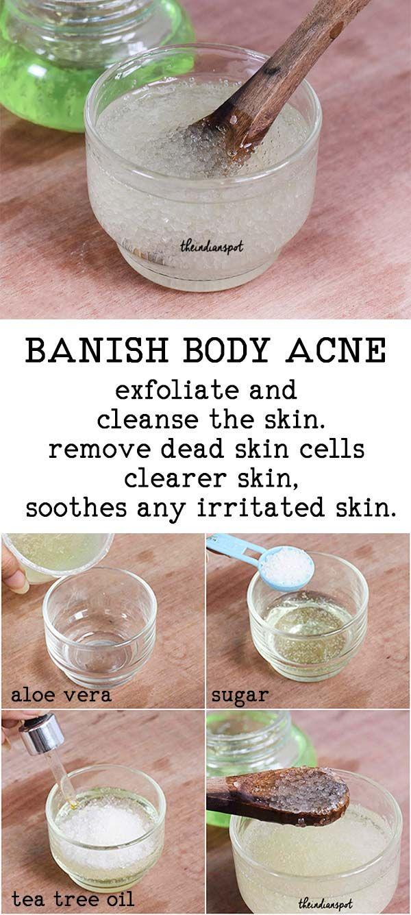 Homemade Body Or Back Acne Scrub With Images Acne Scrub