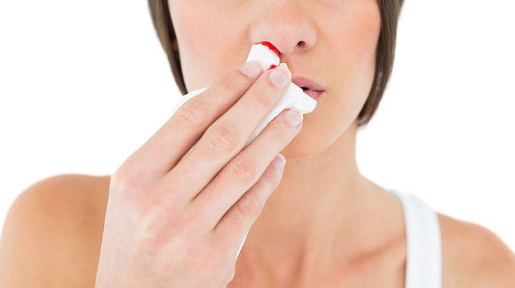 Wenn es aus der Nase blutet: Erste Hilfe gegen #Nasenbluten - https://www.gesundheits-frage.de/4877-wenn-es-aus-der-nase-blutet-erste-hilfe-gegen-nasenbluten.html