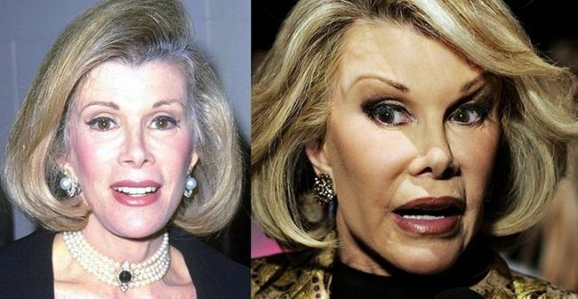 Celebrities Now And Then Joan River 1999 2007