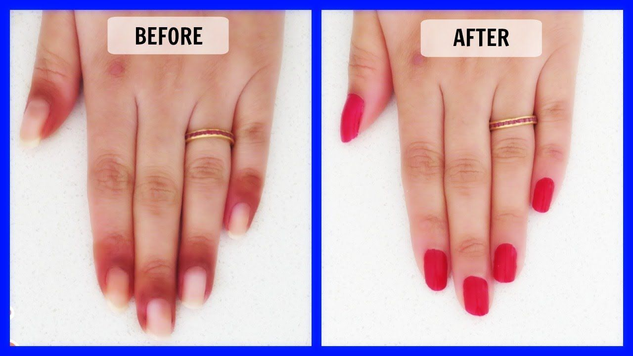 The Best 8 Effective And Essential Ways To Treat Skin Peeling Around The Nail Perimeter 6 Is Great In 2020 Cuticle Peeling Skin Dark Nails