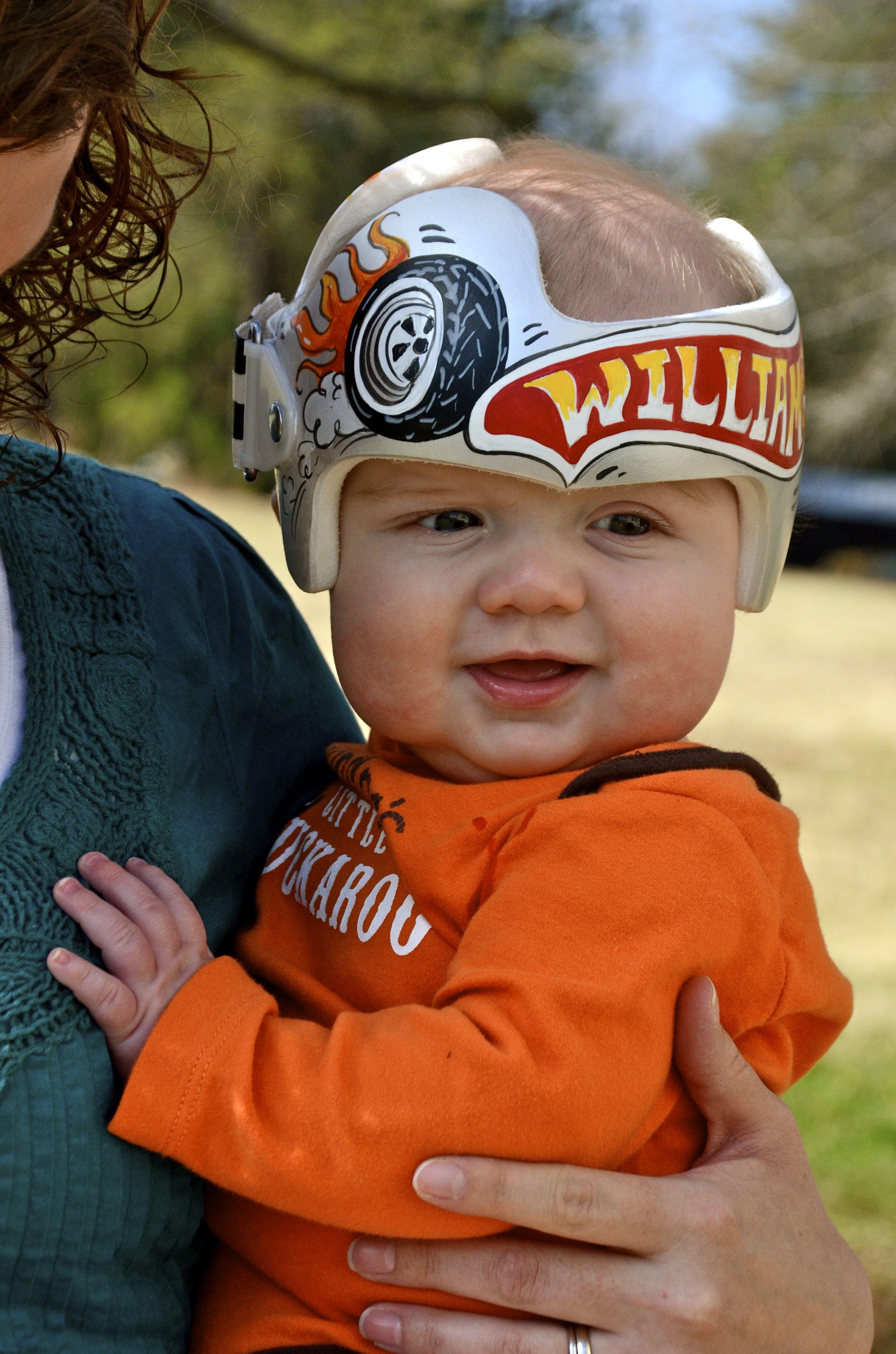 Hot Wheels Themed Cranial Band Www Treasuredinteriors Net Baby Helmet Doc Band Designs Doc Band