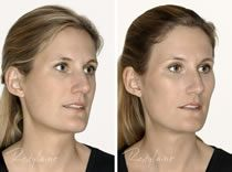 Restylane-Before and After-Dr Rita Rakus dermal fillers before and