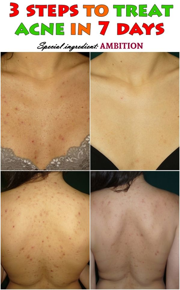 3 Steps To Treat Acne In 7 Days How To Treat Acne Back Acne