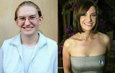 plastic surgery photos sex change surgery before and after in Hereford