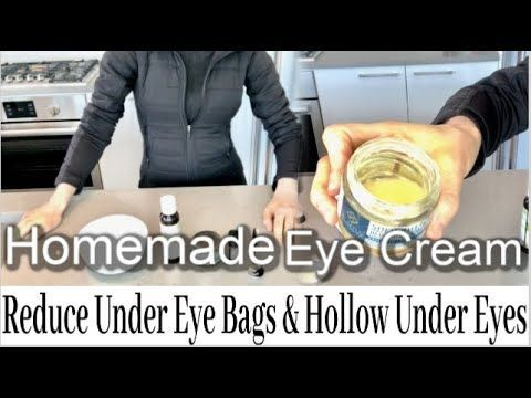 Reduce Under Eye Bags & Hollow Under Eyes with My Homemade ...