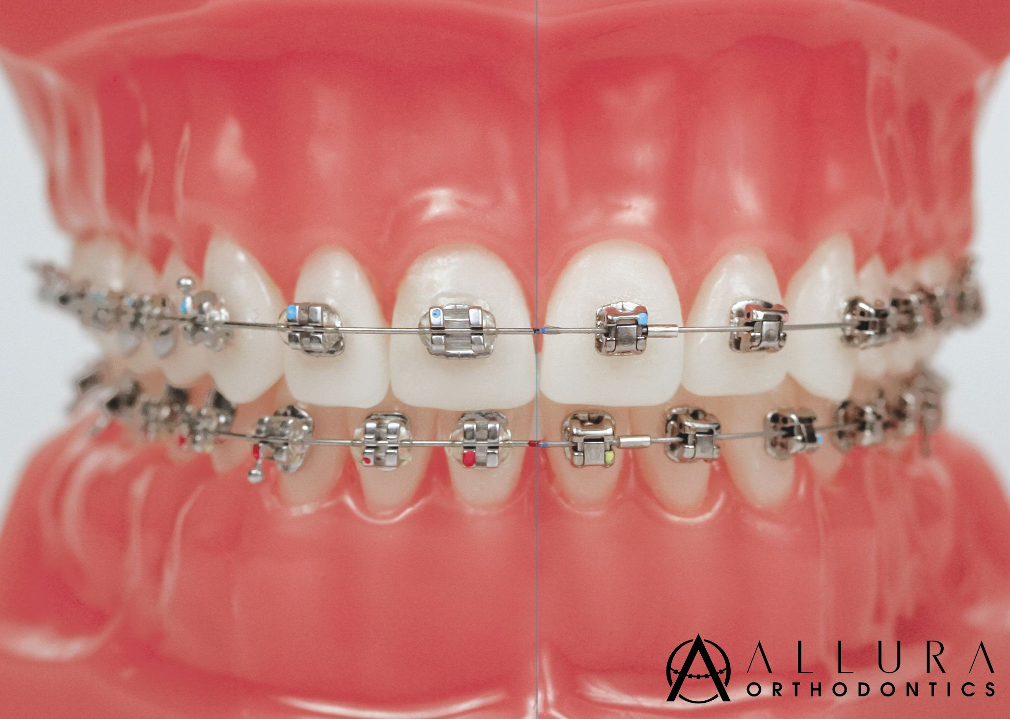 Metal braces also have a new, fun twist without any extra