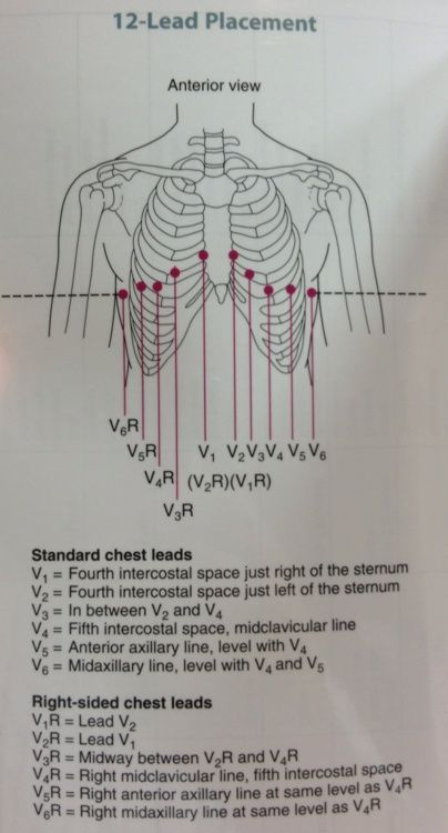 ECG lead placement anatomy
