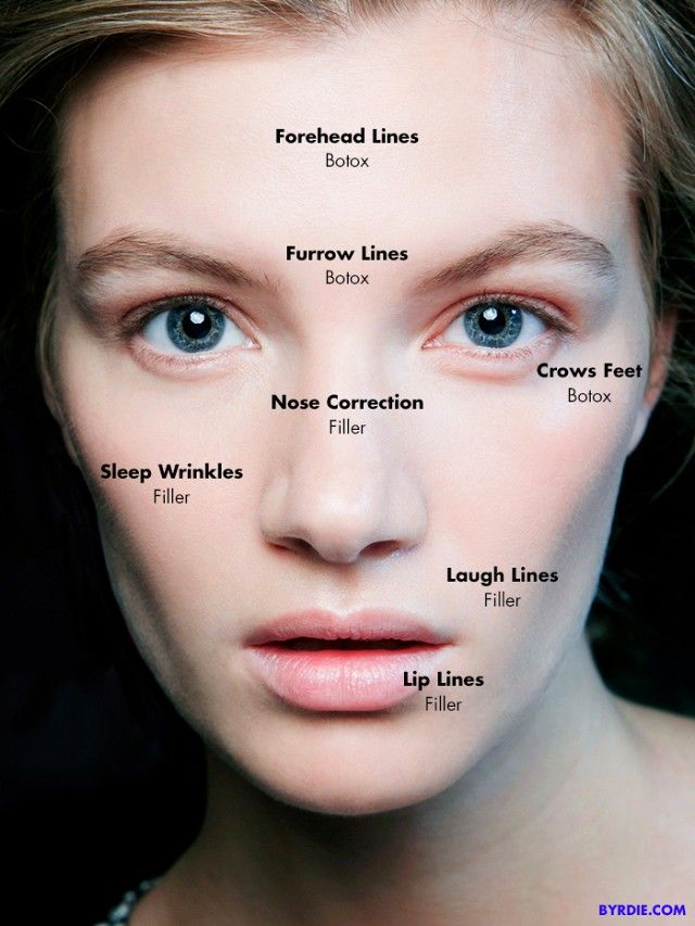 Botox vs fillers which one is better for you pinterest botox botox vs fillers which one is best for you via byrdiebeauty solutioingenieria Gallery