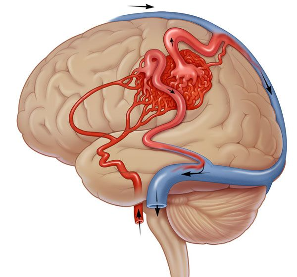 أعراض القولون العصبي تواصل معنا Instagram Map Photo