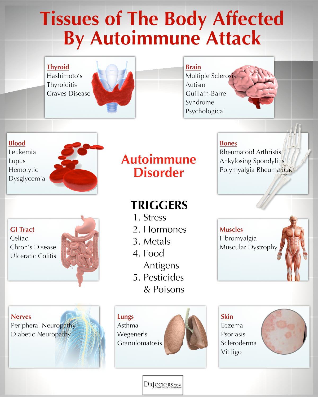 The Autoimmune Nutrition Plan To Reduce Inflammation Drjockers Com Rheumatoid Arthritis Diet Arthritis Diet Autoimmune Disease Symptoms