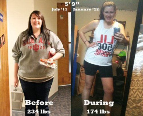 Weight loss during bulimia recovery image 5