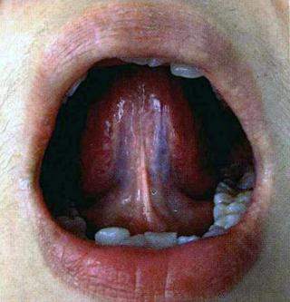 Normal sublingual veins in TCM tongue diagnosis | Veins, Diagnosis ...