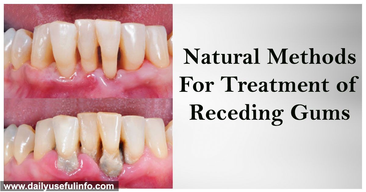 Make Receding Gums Grow Again And Fast With These Natural Methods Receding Gums Homemade Mouthwash The Cure
