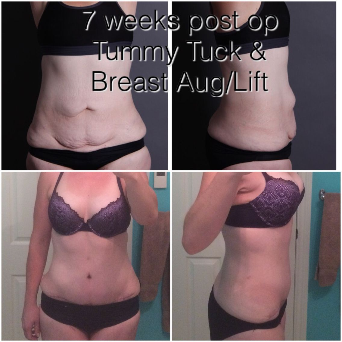 49 Days Post Op Tummy Tuck Witht Augmentation And Lift Plastic Surgery