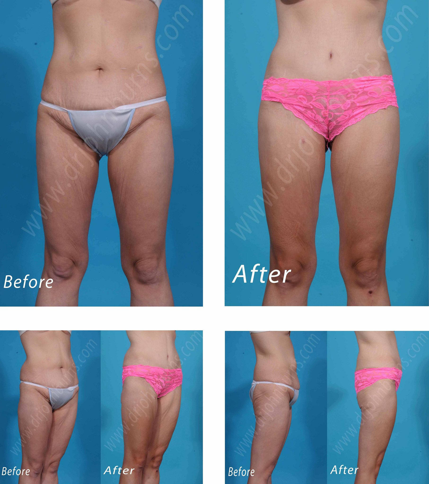 1cd56965e7a9c Mini Tummy Tuck Abdominoplasty