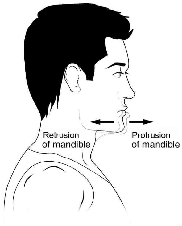 Protrusión – Que es, definición, anatomía | Anatomia | Pinterest