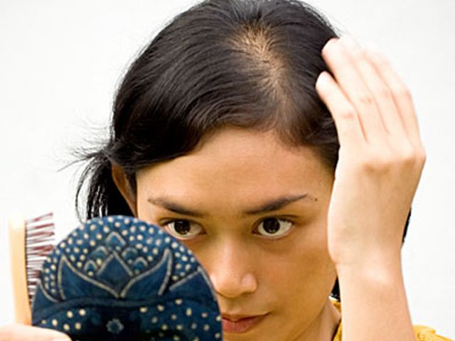 Many Women With Hair Loss Suffer In Silence, Altering