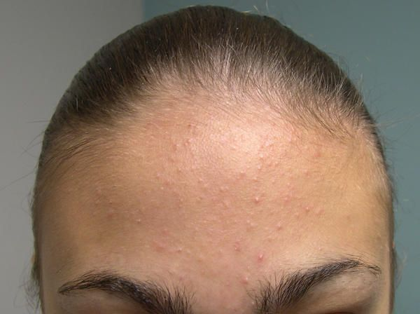 2e0efddeb571b7a0f995ebec3f153e09 - How To Get Rid Of Little Red Bumps On Forehead