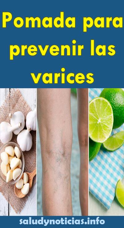 Crema Para Prevenir Las Varices Pin En Tips