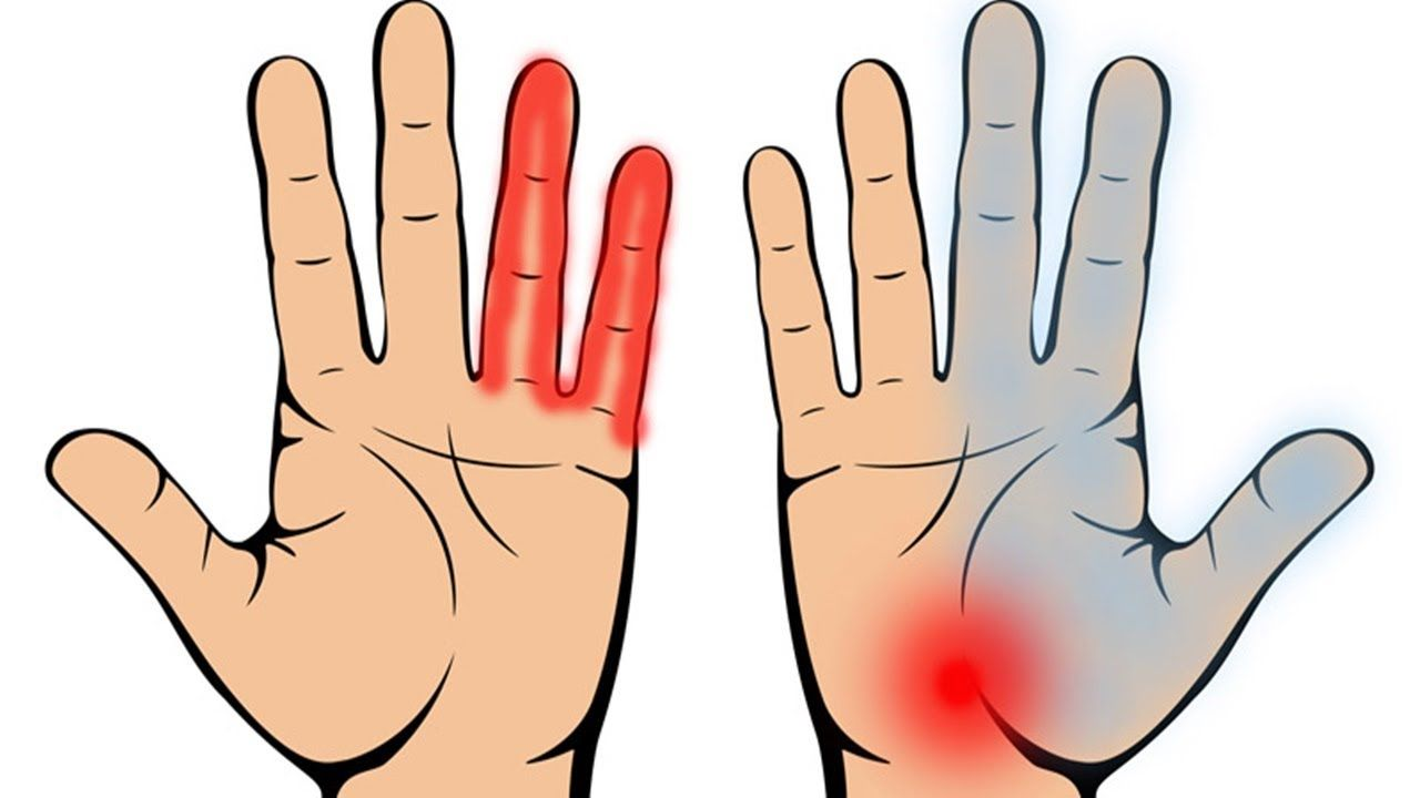 how to prevent carpal tunnel during pregnancy