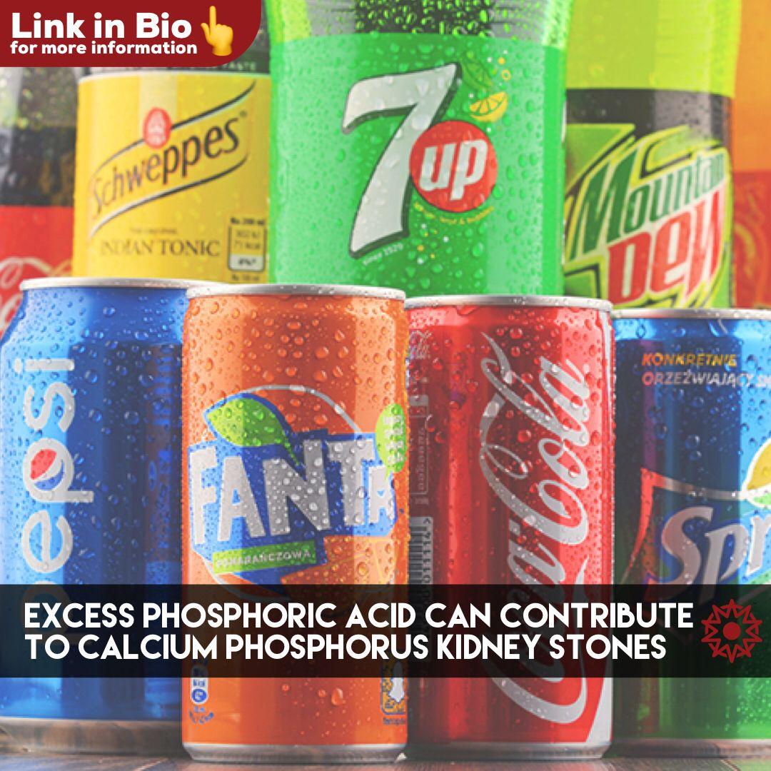 Calcium Phosphate Kidney Stones The Source & Remedy