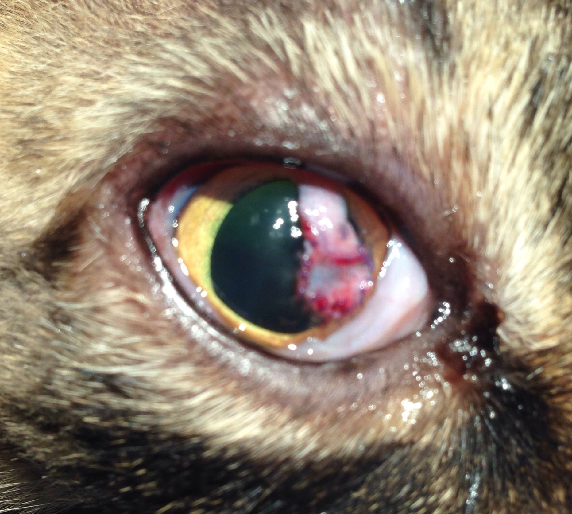 Conjunctival pedicle flap following removal of corneal