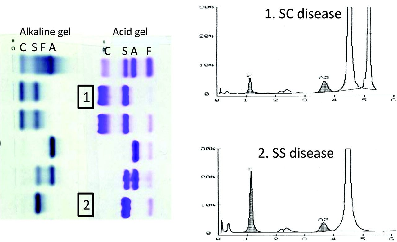 Examples Of Alkaline And Acid Gel Electrophoresis And High