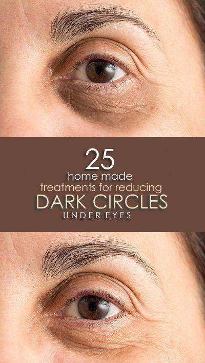 How To Remove Dark Circles Under Eyes? #undereyewrinkles #UnderEyesHollows