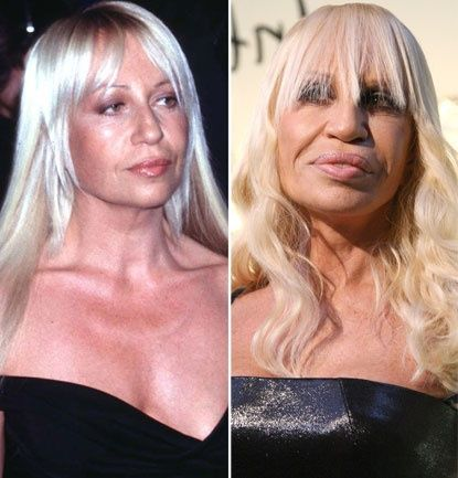 donatella versace c l brit s celebrity plastic surgery. Black Bedroom Furniture Sets. Home Design Ideas