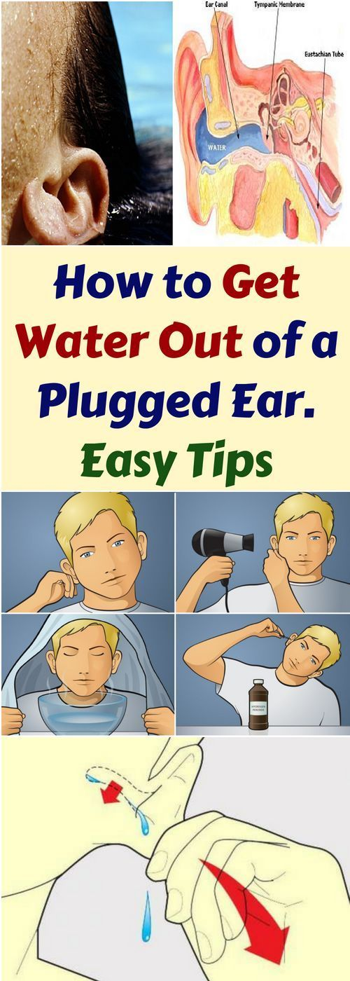 How To Get Water Out Of A Plugged Ear Here  Easy Tips!!!  #beautytips  #fitness