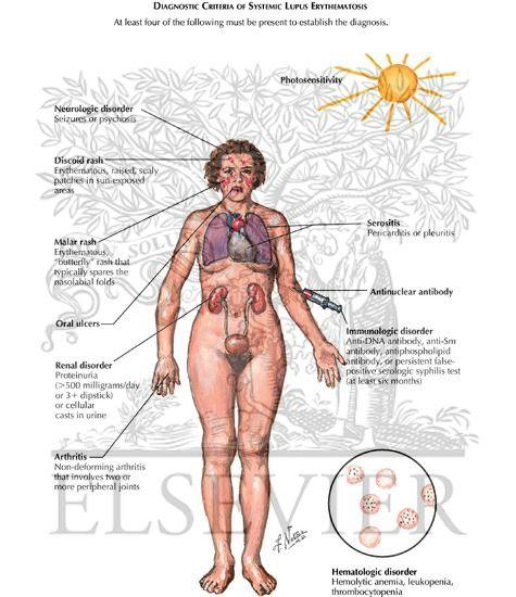 Major Diagnostic Criteria Of Systemic Lupus Erythematosus Sle