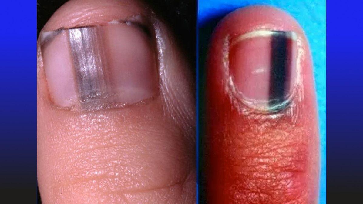 dark stripes on nail indicate melanoma cancer | natures way | Pinterest