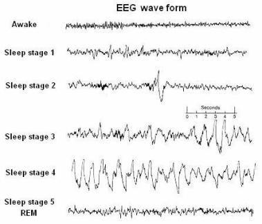 Sleep stages with corresponding EEG waves | EEG | Neurology