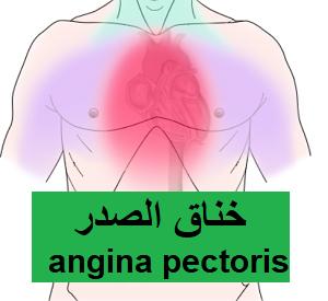 Pin By Mgh H On أعراض و أمراض Angina Pectoris Movie Posters Movies