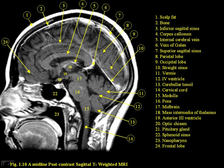 Pin By Jason Sun On Medical Pictures Pinterest Mri Brain Brain