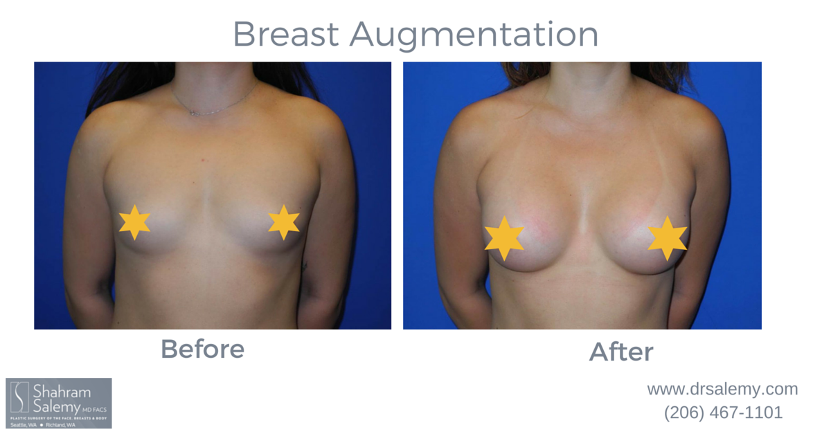 f49e20f738bcf Breast Augmentation Before   After INSPIRA SRM-330cc Smooth Round Medium Profile  Silicone Implants. More before and after photos at www.drsalemy.com photo-  ...